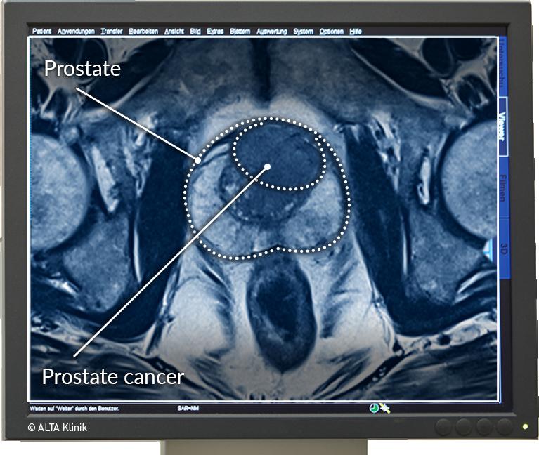 MRI PELVIS prosztatitissel)