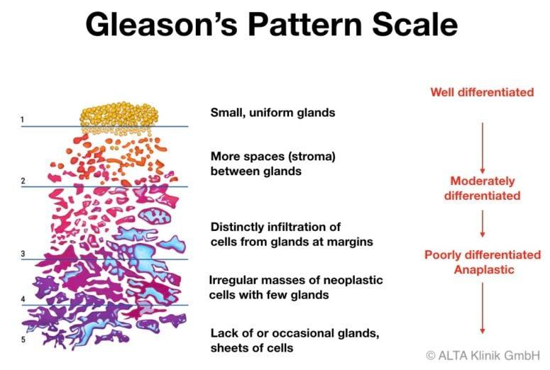 cancer de prostata gleason 7 (4+3)